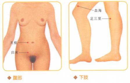 慢性盆腔炎