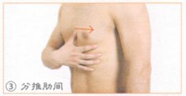 肋间神经痛
