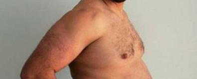 肥胖带来高血脂症  试试降脂汤