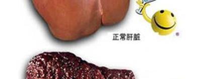 防治肝硬化怎么吃 两种水果是首选