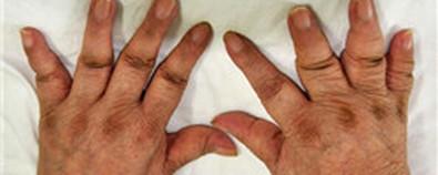 类风湿性关节炎或致残 5款药膳来调理