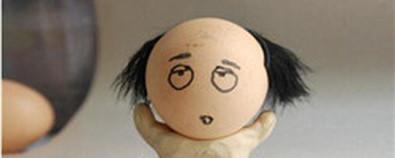 男士脱发影响美观 需要内外兼顾调理