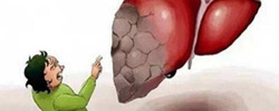这一肝病比肝癌更可怕 它就是晚期肝硬...