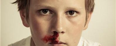 鼻出血的原因与饮食小偏方