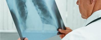 肺结核的症状及病因解析